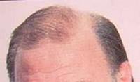 Remedios caida del cabello
