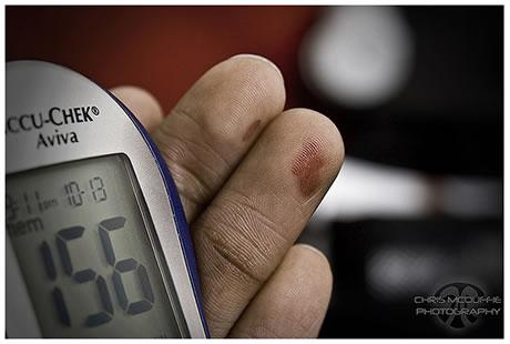 ¿Existe una cura para la Diabetes Tipo 1 y Tipo 2?