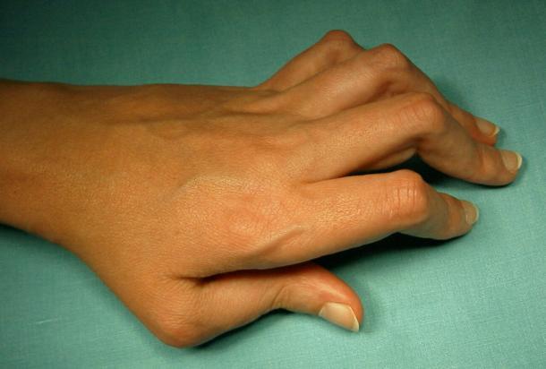 Artrosis y La Medicina Natural